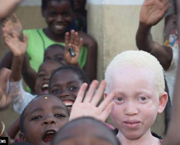 Albinos in Malawi